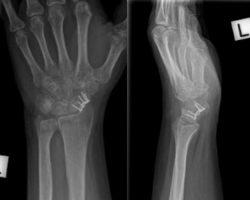 22-wrist injury