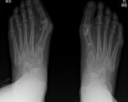 16.1-Forefoot corrective surgery1